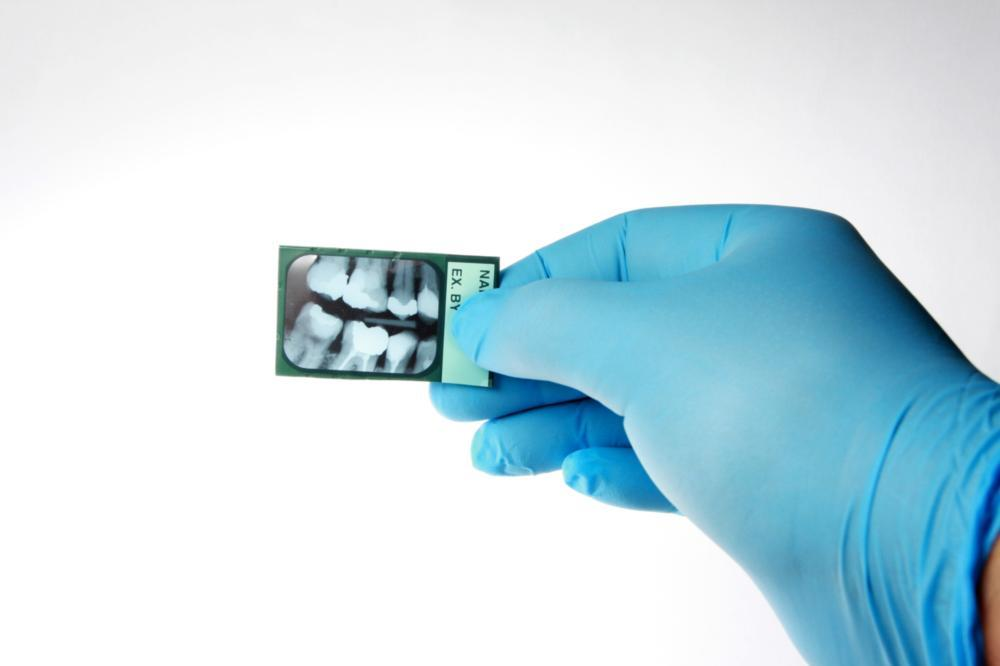 a dentist holding a dental x-ray | dental x-rays Deerfield NH