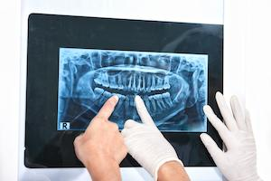 an image of a dental x-ray | Deerfield NH dental X-rays
