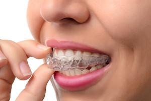 a woman puts in her Invisalign aligners | Invisalign Candia NH